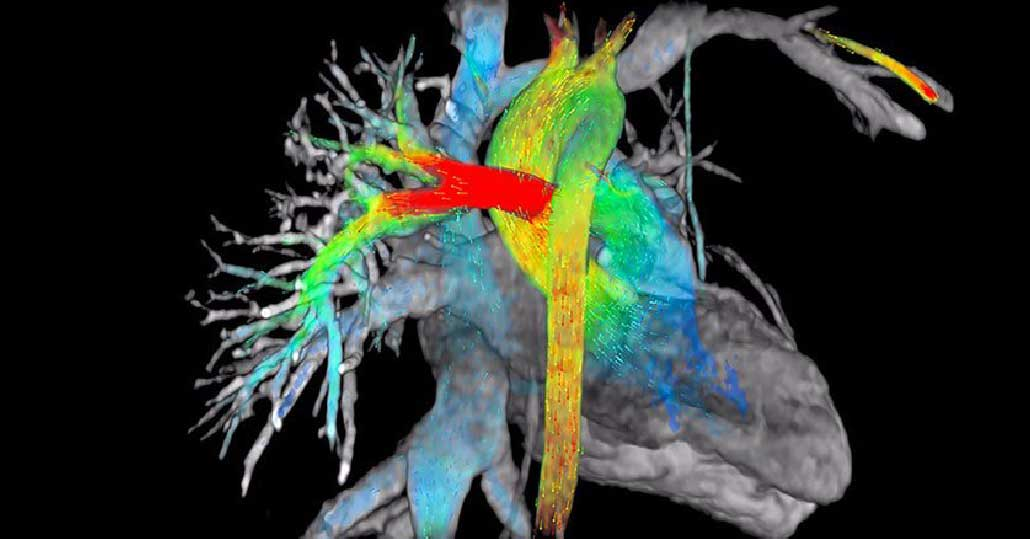 cuore-risonanza-magnetica-igea-santantimo