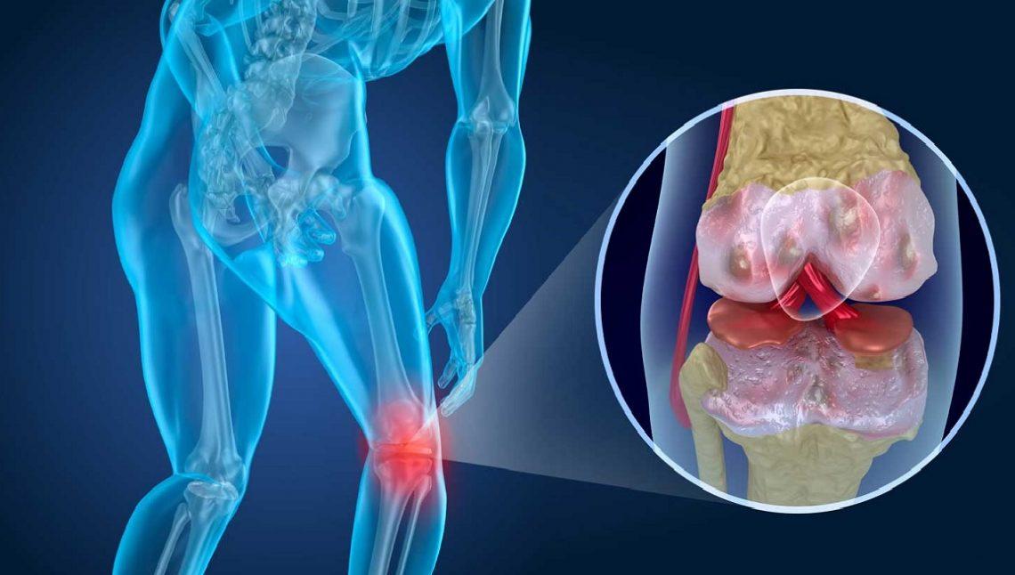 Artrosi, come prevenirla
