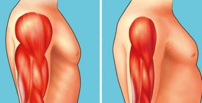 distrofia-muscolare-igea-s.antimo