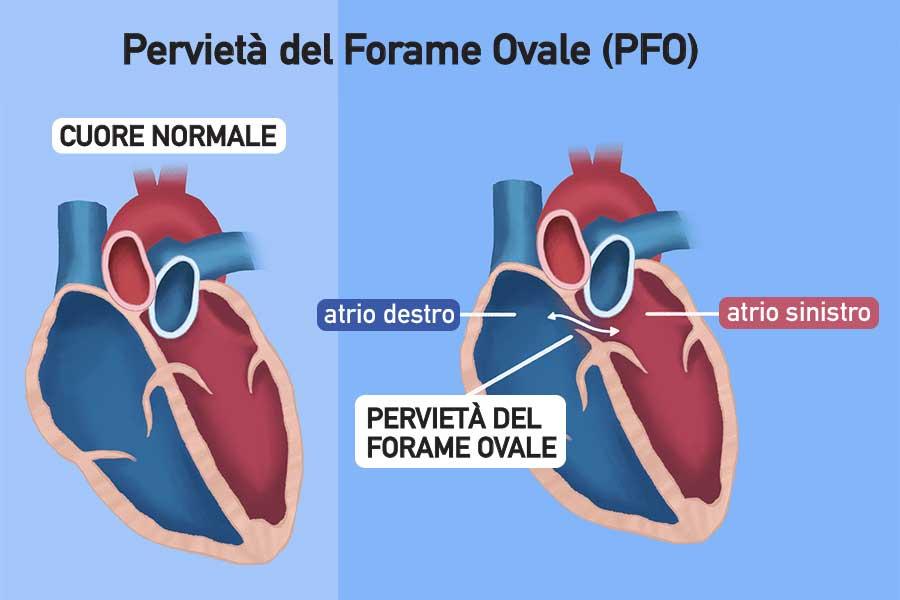 Pervietà del Forame Ovale o PFO