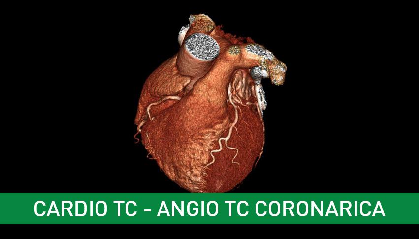 Cardio TAC – Angio TAC Coronarica