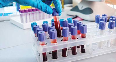 Controllo di base: Azotemia, Glicemia, Emocromo, Trigliceridi, Colesterolo LDL e HDL,  GOT, GPT