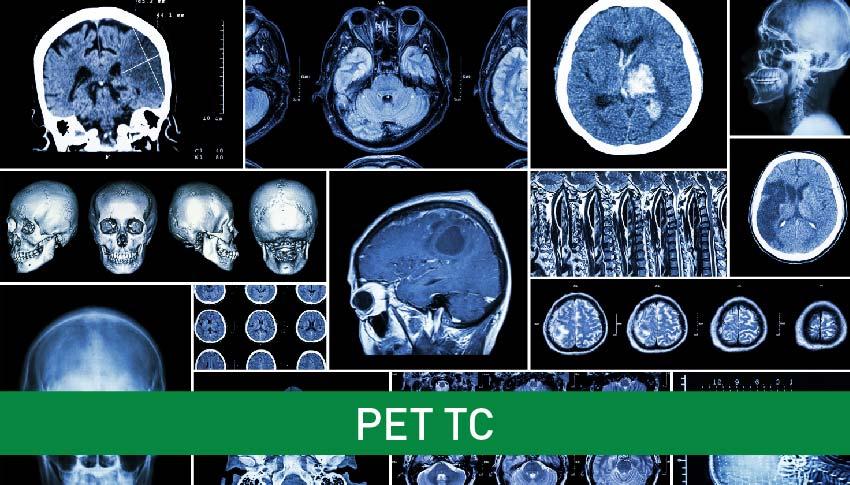 Informazioni sull'esame  PET TC