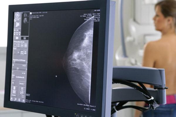 mammografia-digitale-centro igea-s.antimo-napoli