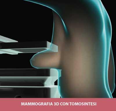 mammografia-tomosintesi-igea-s.antimo-napoli