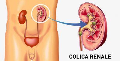 La colica renale, quell'attacco di dolore indimenticabile