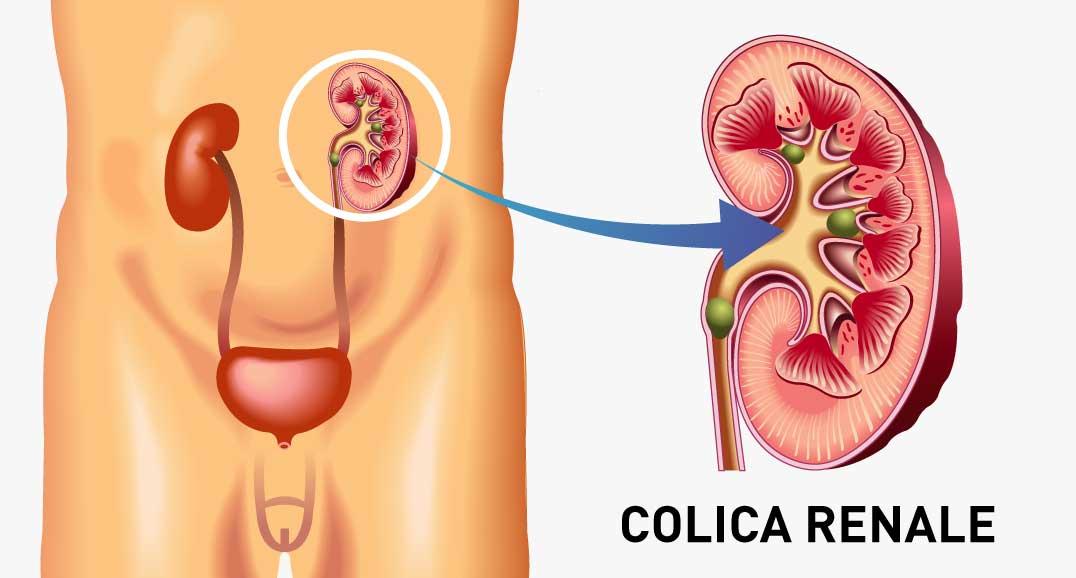 COLICA-RENALE