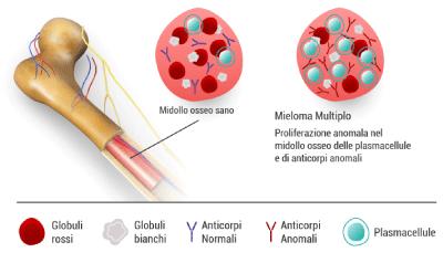 midollo-osseo-plasmacellule