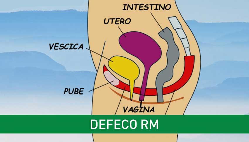 defeco-rm-igea-santantimo