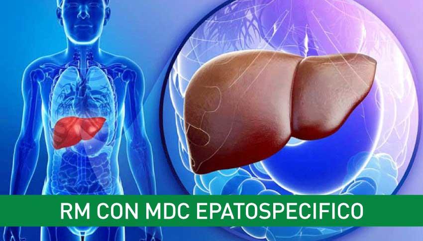 rm-con-MDC-epatospecifico-igea-sant-antimo