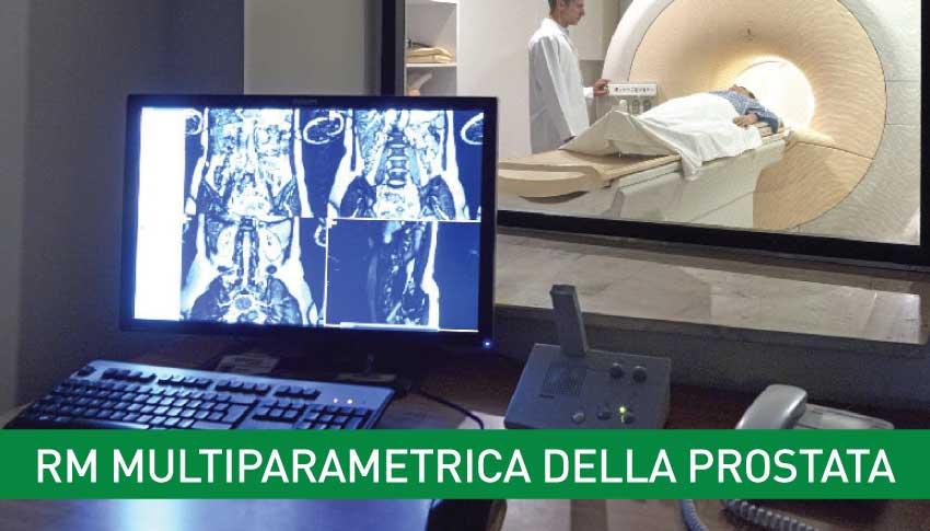 rm-multiparametrica-della-prostata-igea-sant-antimo