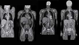 WBLDCT.-TC-dello-scheletro-a-bassa-dose-di-radiazioni-Igea-S.-Antimo