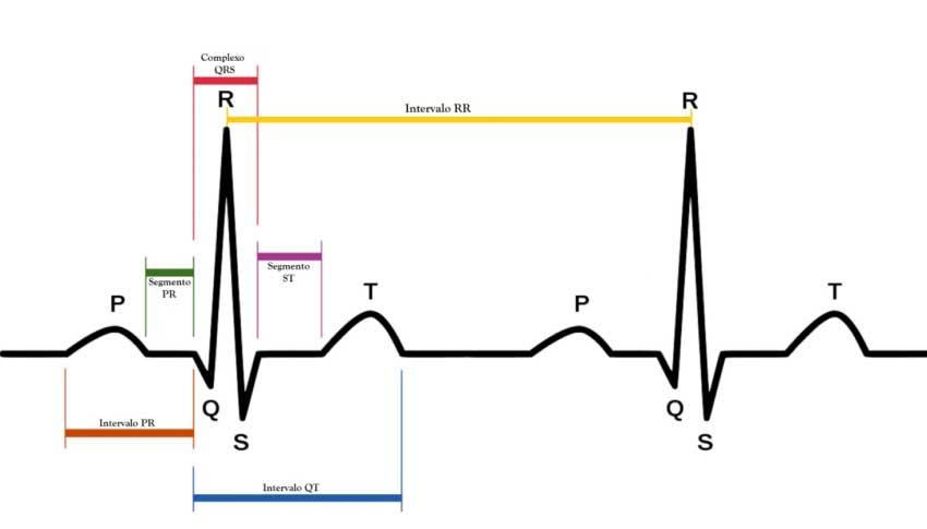 Interpretazione dell'Elettrocardiogramma