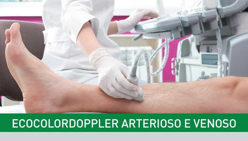 EcocolorDoppler arterioso e venoso degli arti
